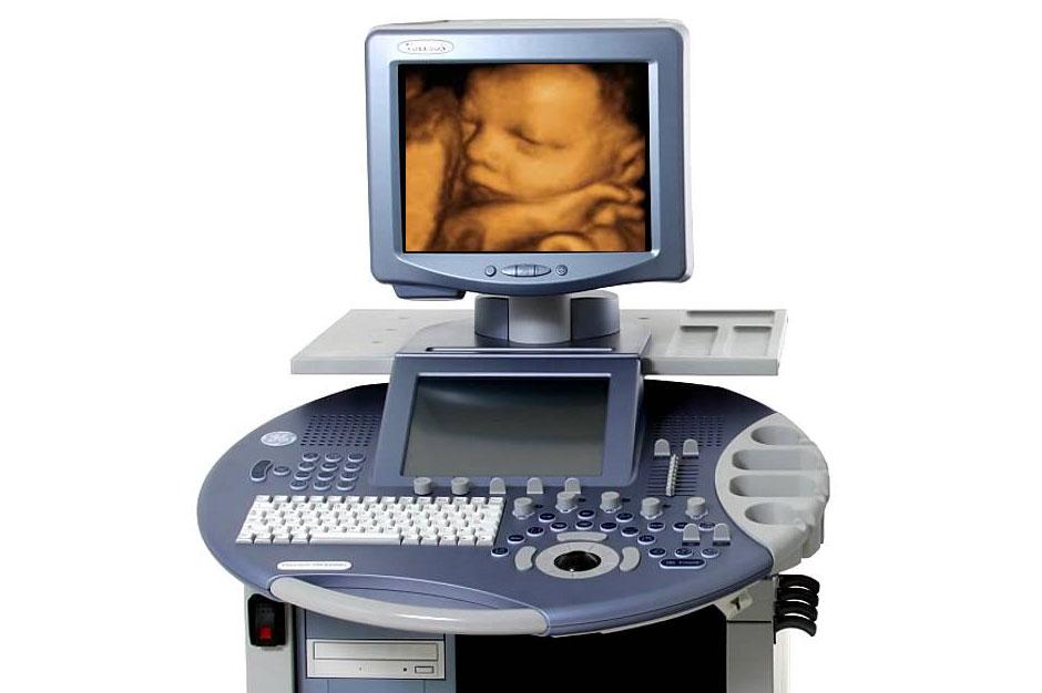 3D/4D Ultrasound